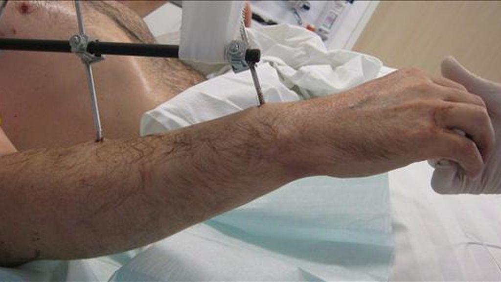 En la imagen, un paciente tras un trasplante de brazos. EFE/A