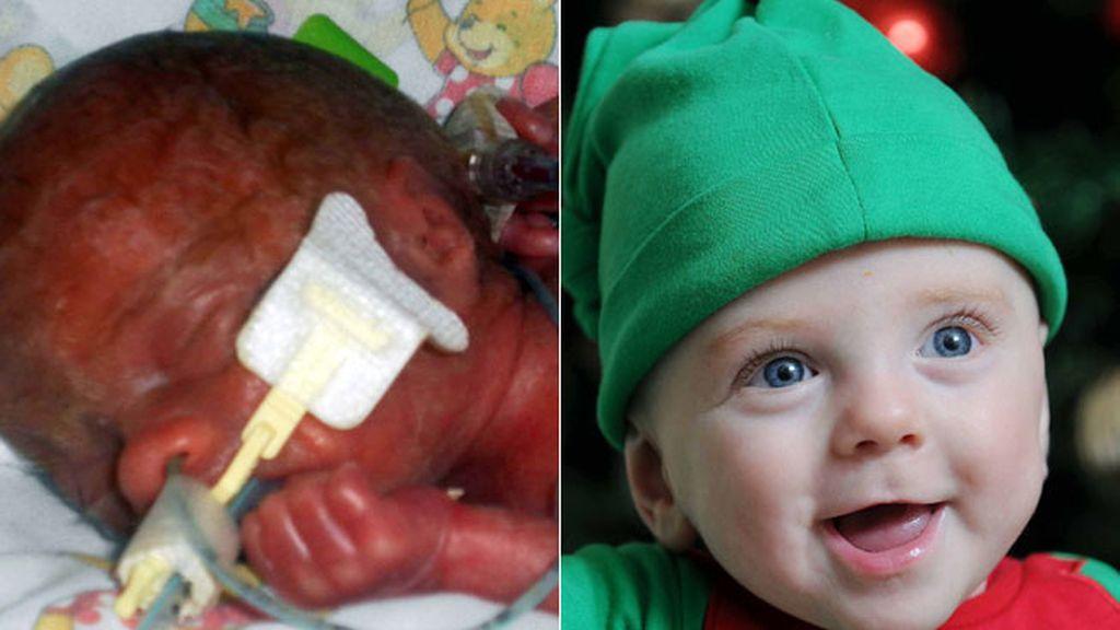 El bebé Jacob O´Brien, un milagro navideño