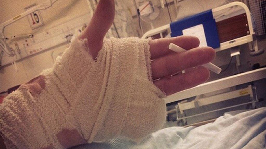 Adolescente pierde un dedo en una fiesta rave y sigue bailando