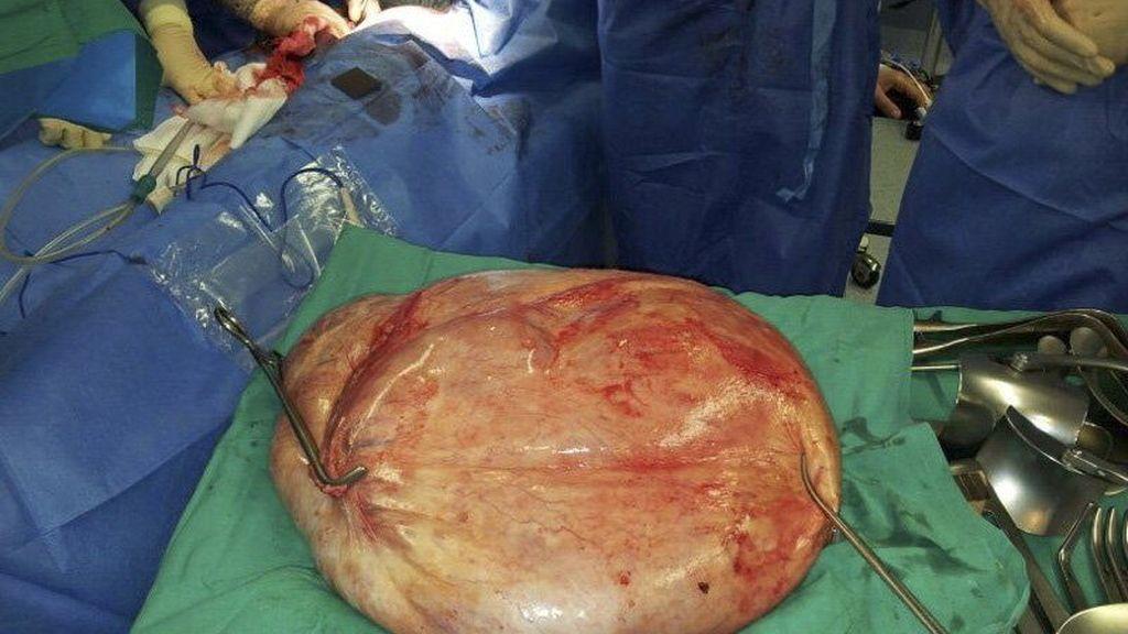 Extraen con éxito un tumor de 25 kilos en el hospital de Torrevieja