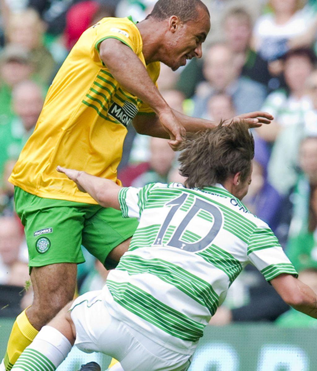 El fútbol le pasa factura a Louis Tomlinson