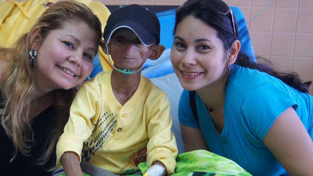 Fallece un joven con envejecimiento prematuro en Venezuela