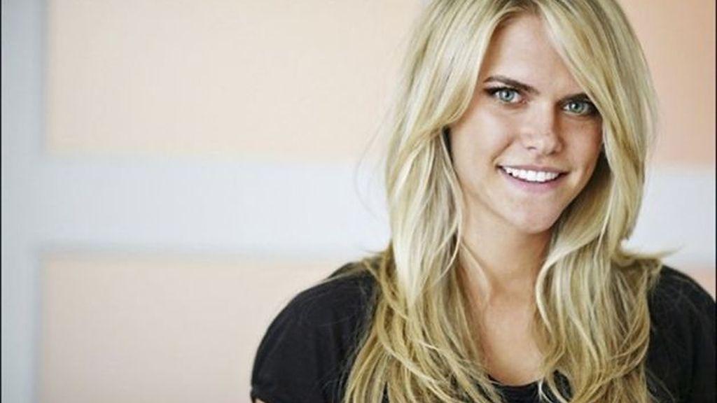 La modelo Lauren Scruggs pierde una mano y un ojo al golpearse con la hélice de un avión