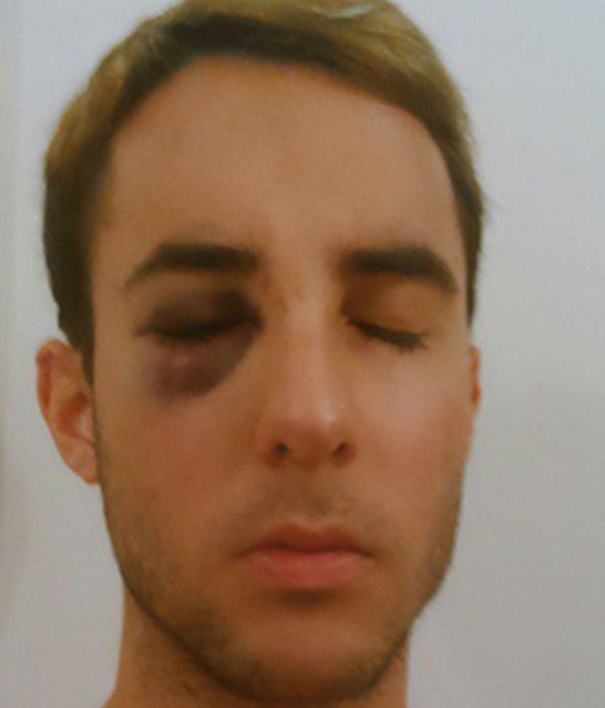 Un joven homosexual es agredido por un guarda de seguridad de Renfe