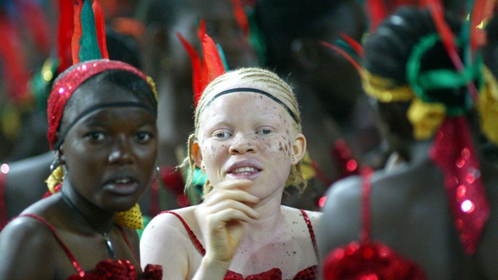 Adolescente nigeriana albina