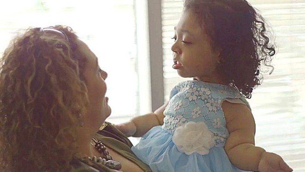 Janelly, la niña que nació sin huesos