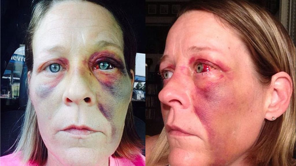 mujer maltratada, violencia de género