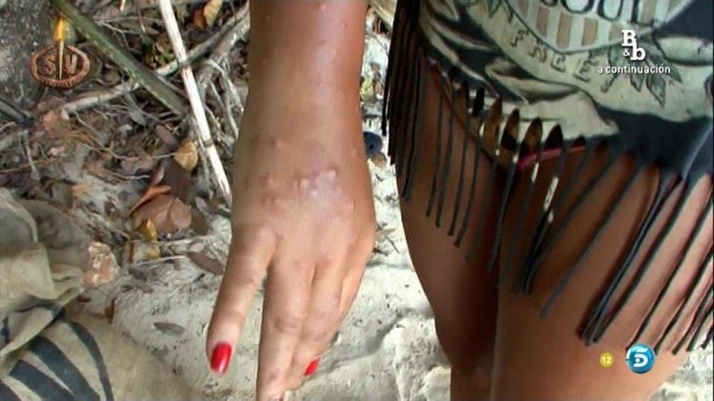 Rebeca tiene que ser evacuada de Playa Uva por las picaduras