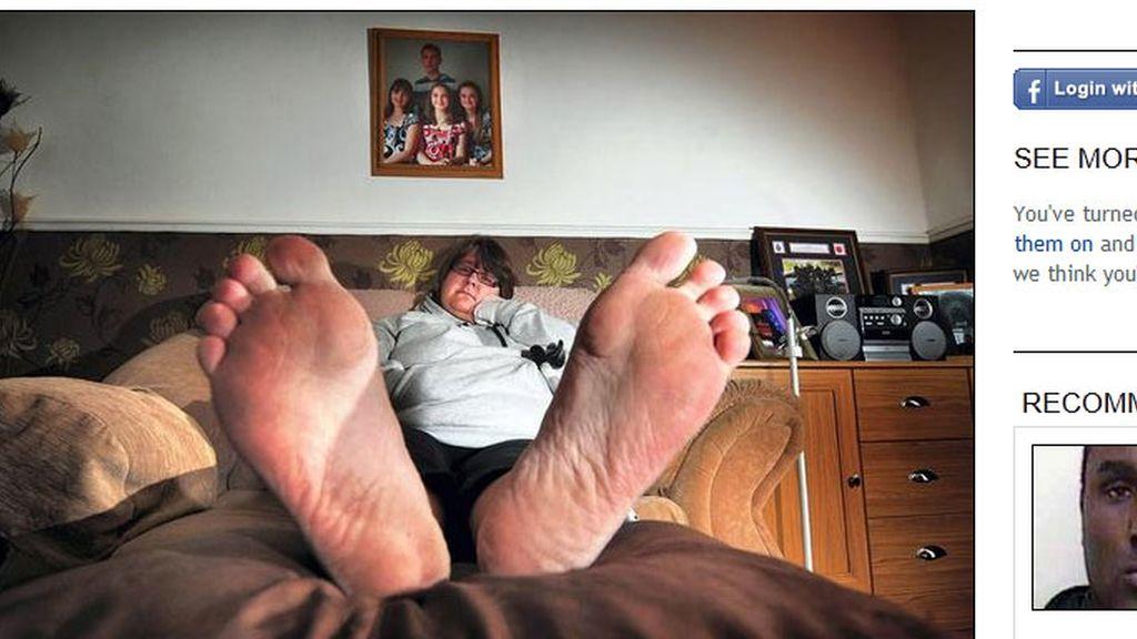Tracy Kenny,alérgica,alergia a los zapatos