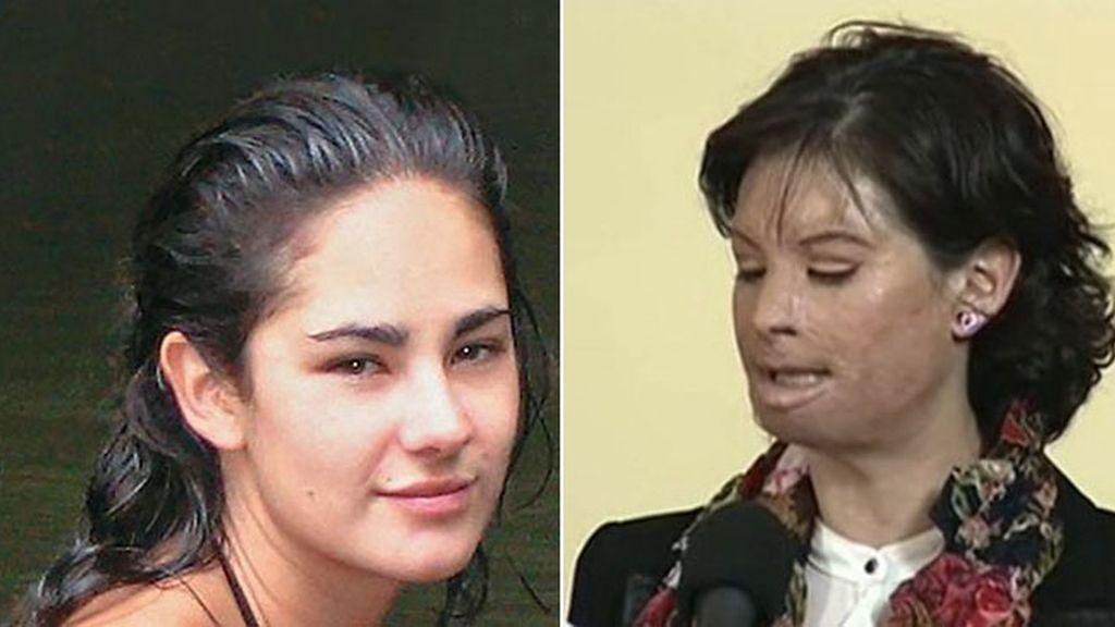 Muestra su rostro por primera vez desde que fue atacada con ácido