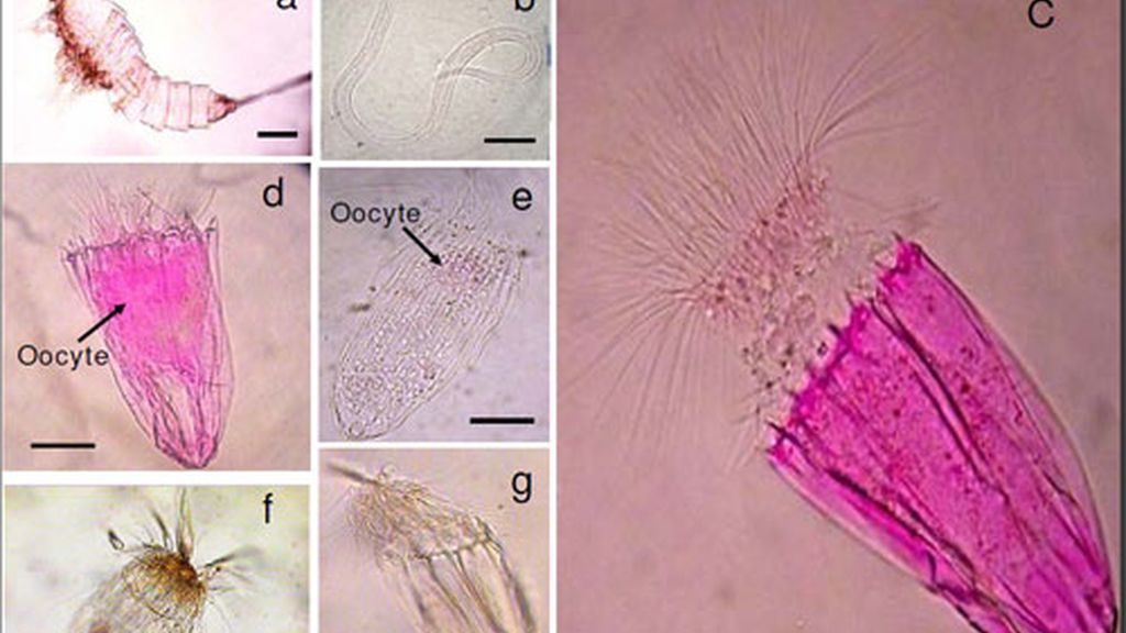 Imagen de los loricíferos. Foto: BMC Biology.