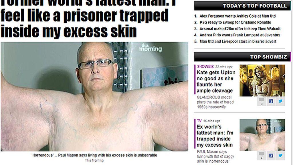 Paul Mason se queja del exceso de piel que le ha quedado tras adelgazar 285 kilos