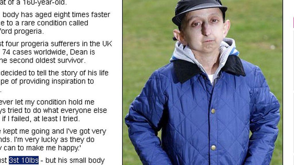 Dean padece envejecimiento prematuro