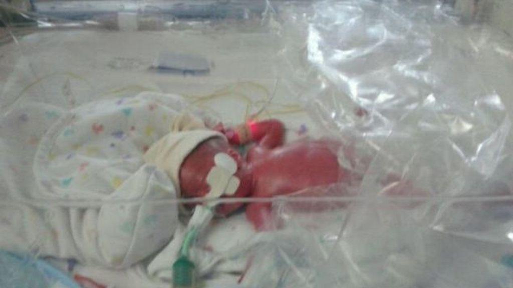 Bebé prematuro protegido en una bolsa de plástico convencional