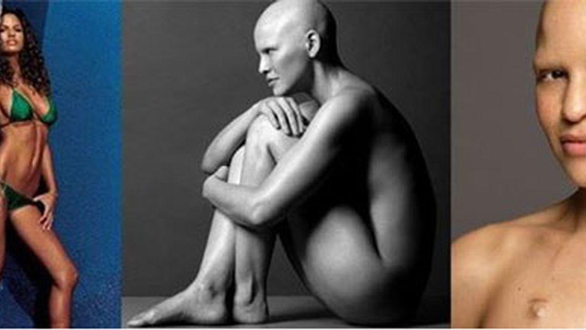 modelo cáncer, Mieko Rye,