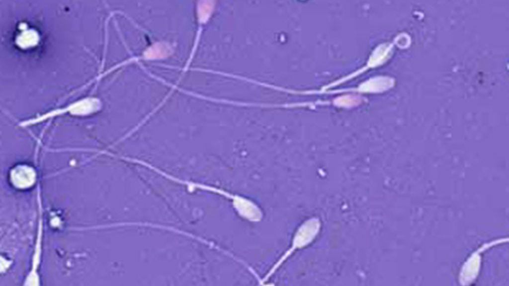 ¿Elegir al mejor espermatozoide? Foto: Archivo.
