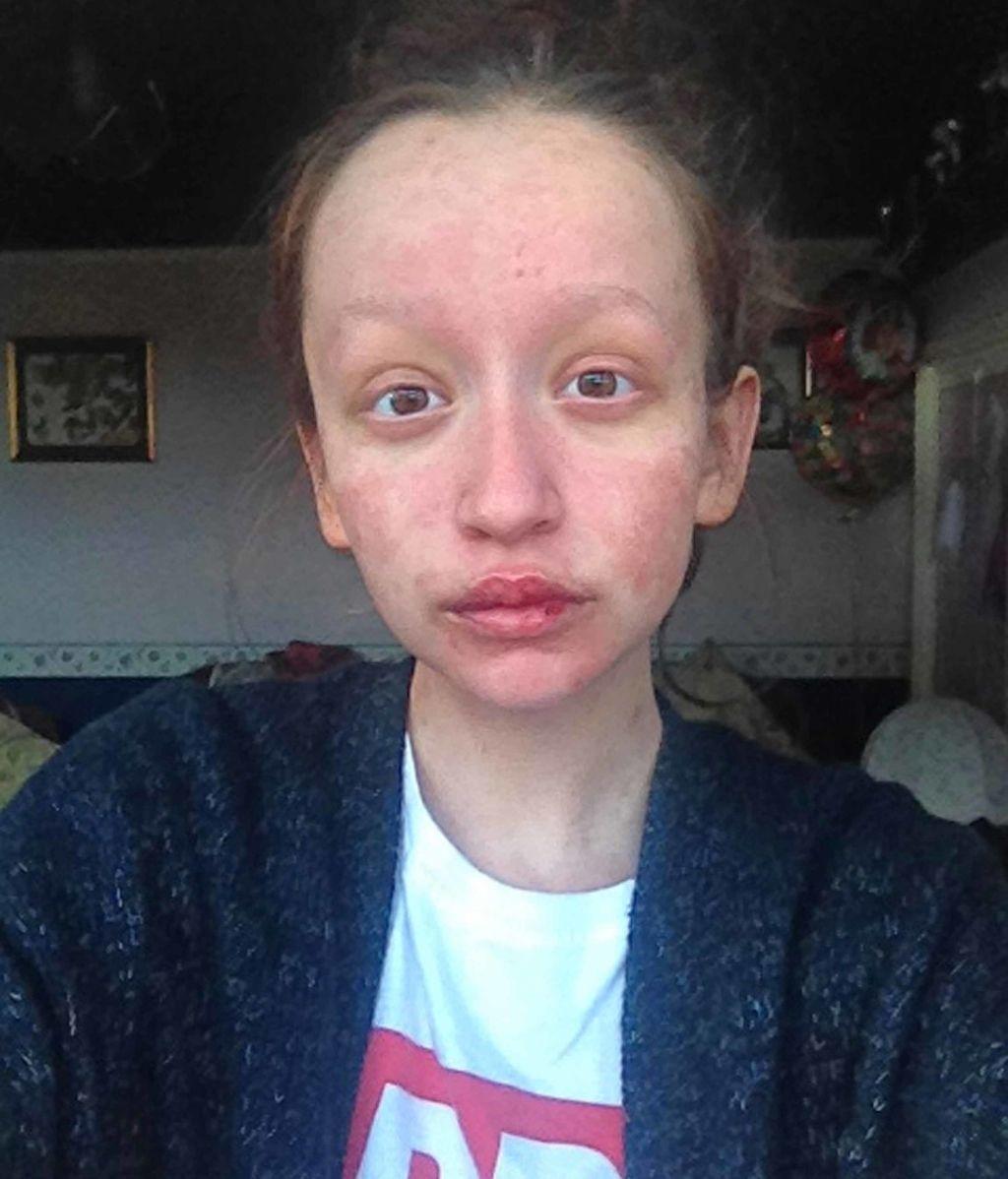 Luce su nueva cara después de que una extraña alergia se la destrozase
