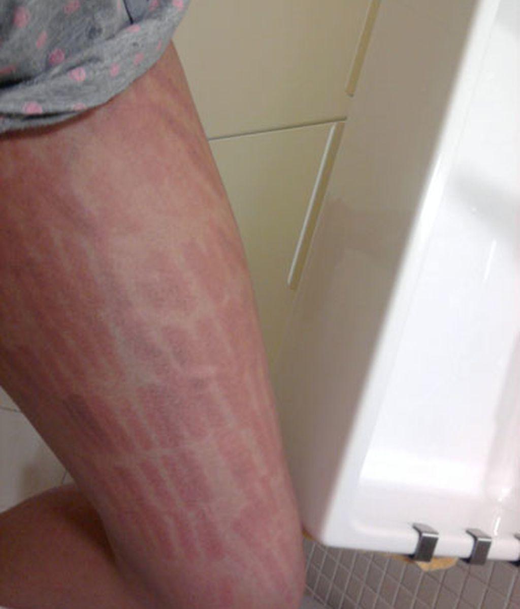 Marcas por las piernas
