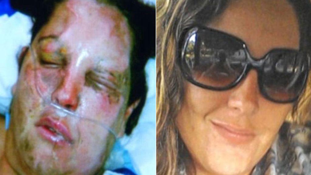 La cara de una mujer 'arde' en el quirófano