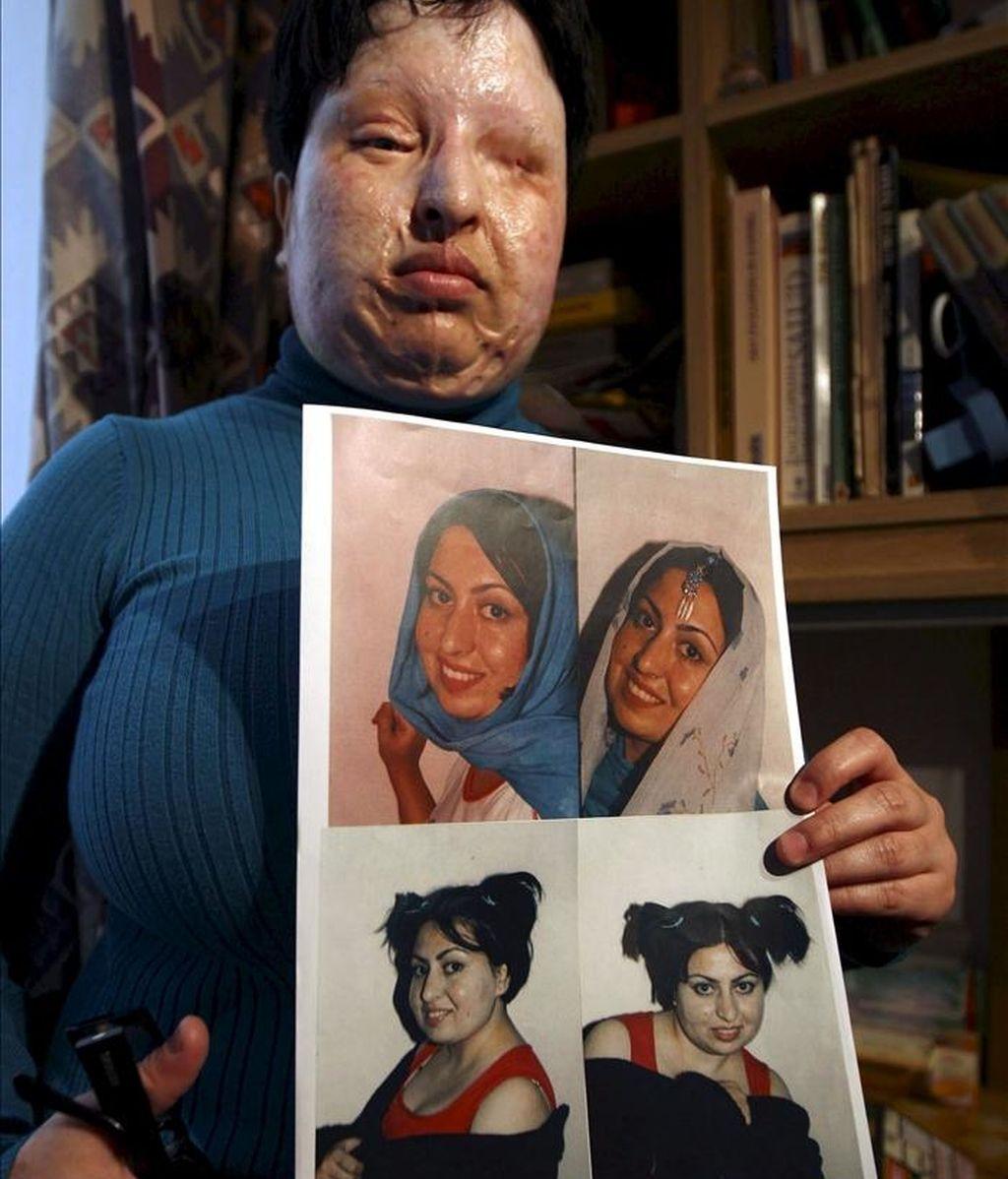 Fotografía de archivo tomada el 4 de marzo de 2009 que muestra a la iraní Ameneh Bahrami mostrando fotografías suyas antes de quedarse ciega en 2004 después de que un compañero de facultad, Majid Movahedi, le quemara el rostro por negarse a casarse con él. Amnistía Internacional pidió ayer a Irán desde Londres que se le condone la sentencia que debía llevarse a cabo hoy, sábado, 14 de mayo de 2011. EFE