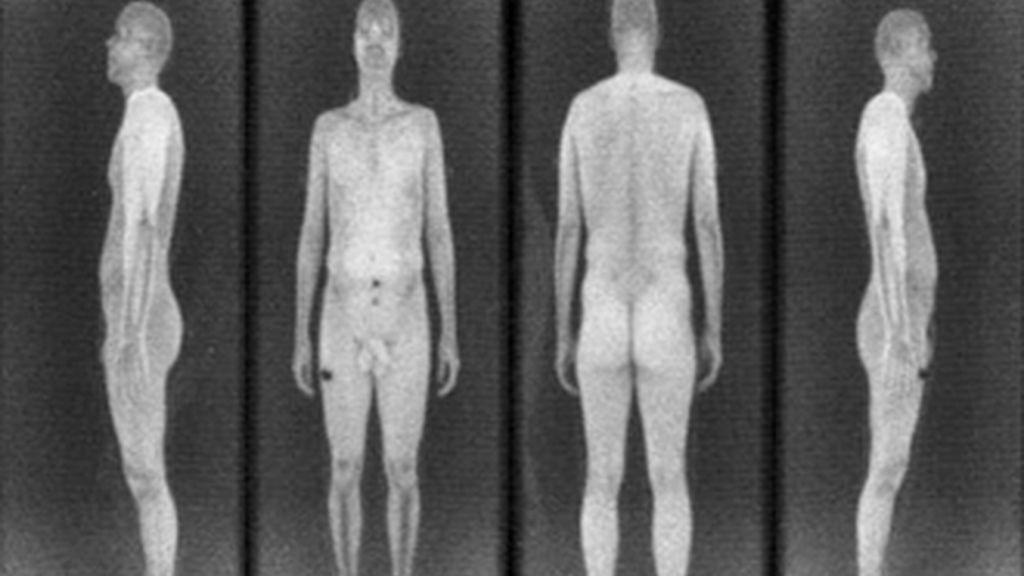 Los escáneres corporales, aparatos de rayos X aprobados e instalados en aeropuertos estadounidenses para garantizar la seguridad provocan una protesta civil. Vídeo Informativos Telecinco