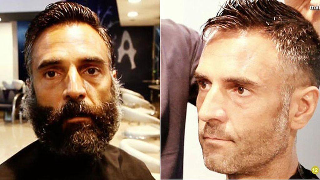 El antes y el después del superviviente