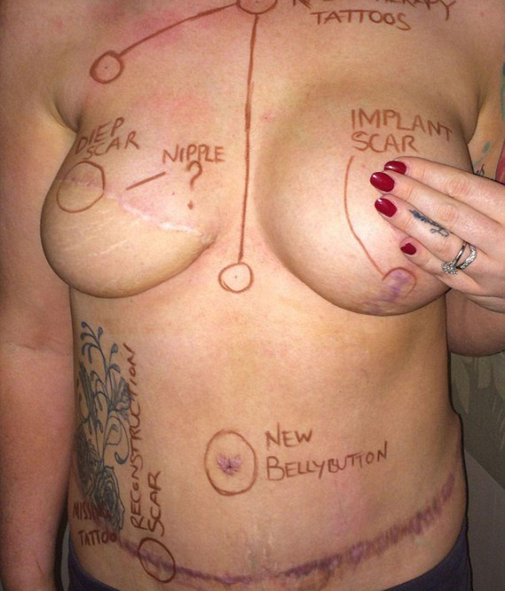 Cicatrices que deja el cáncer de mama