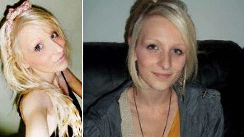 Oculta a su familia la anorexia que sufría hasta que muere con 38 kilos