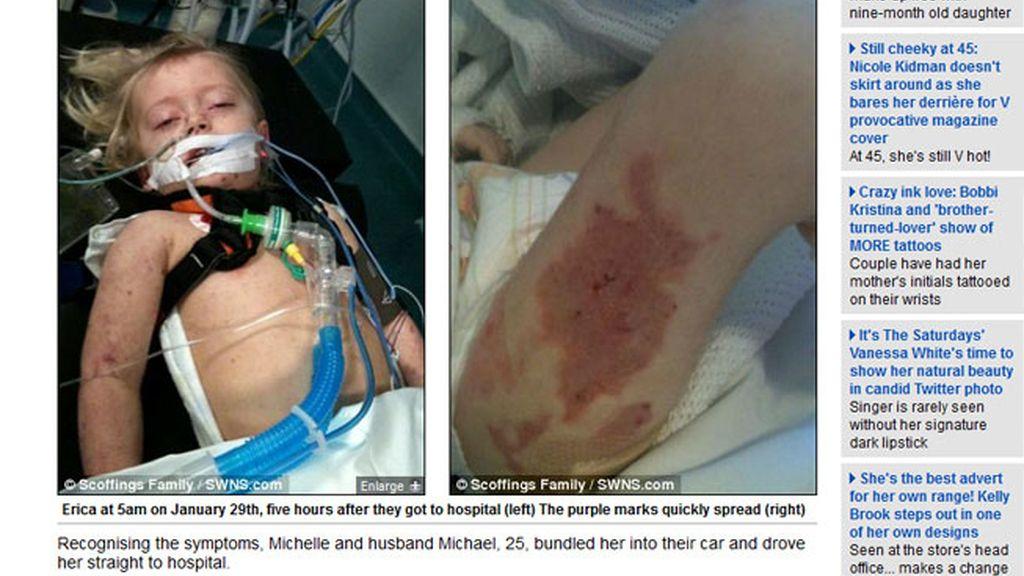 Una madre salva la vida de su hija, atacada por la meningitis