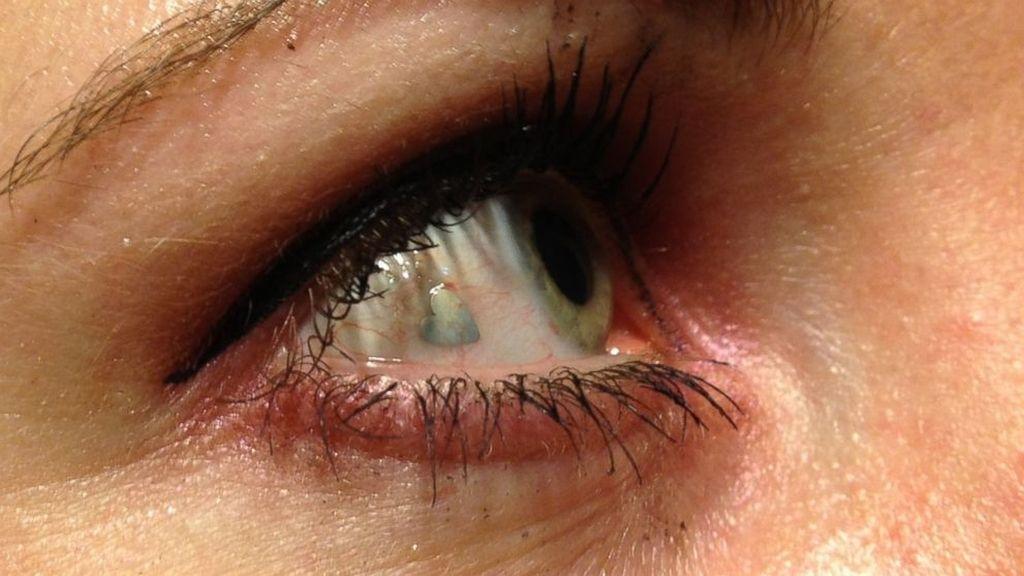 implante,joya,ojo,implante ocular,platino,moda,oftalmología
