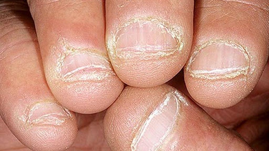 morderse las uñas,onicofagia