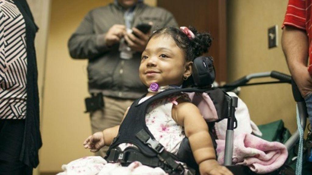 Janelly, la niña que sobrevive a la hopofosfatasia