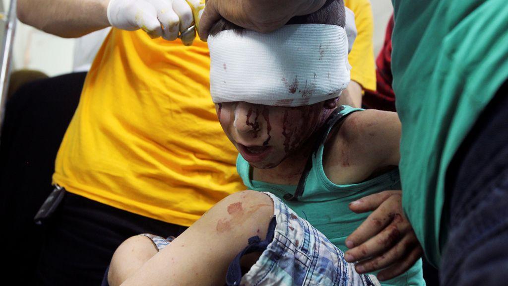 Un niño sirio es atendido por médicos de las heridas