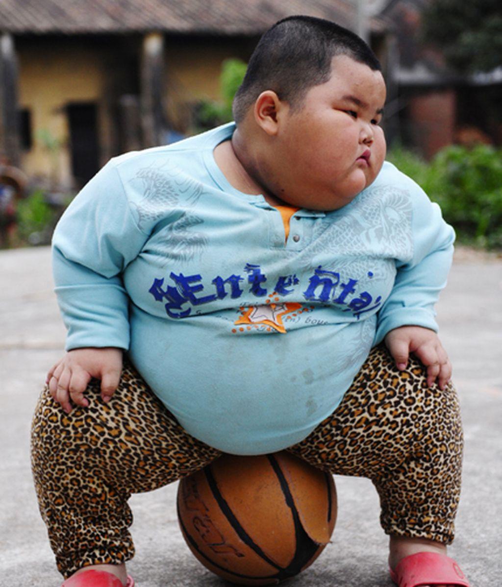 Con cuatro años y 62 kilos, es el niño más gordo del mundo