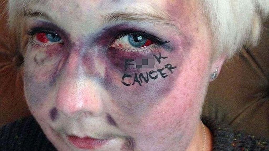 Impactante 'selfie' contra la leucemia