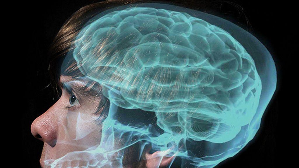 desorden bipolar, cerebro, enfermedades mentales