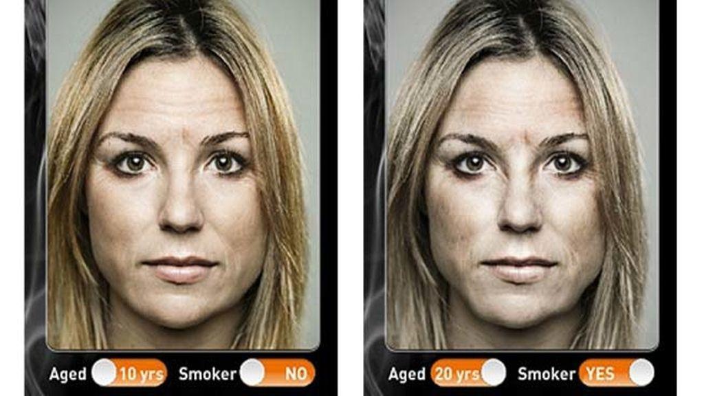 Los efectos de la nicotina en la piel