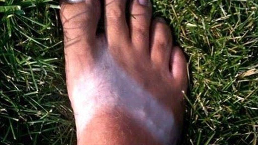 Los rayos UVA y el sol dañan la salud