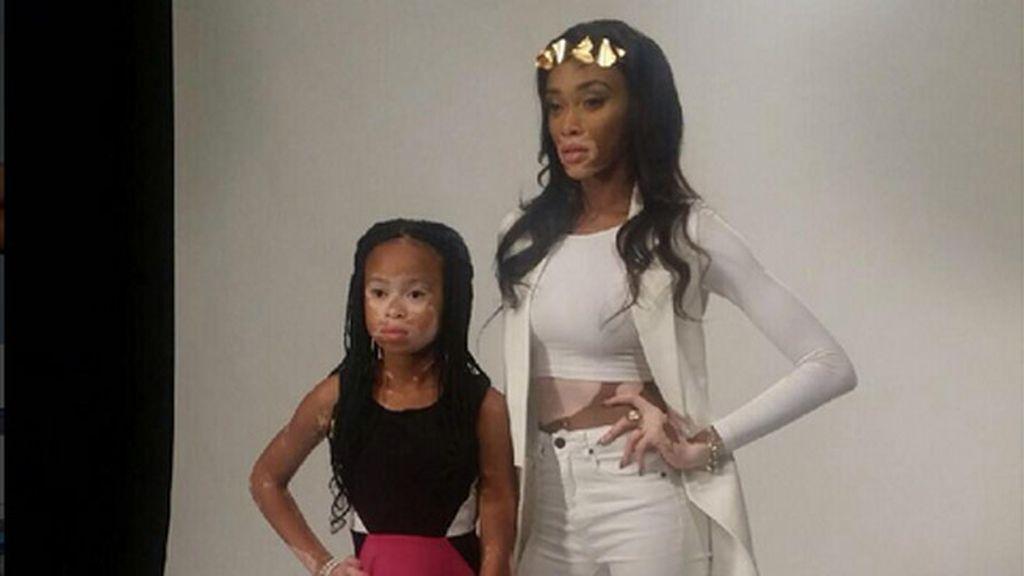 La niña con vitiligo que ha revolucionado las redes sociales