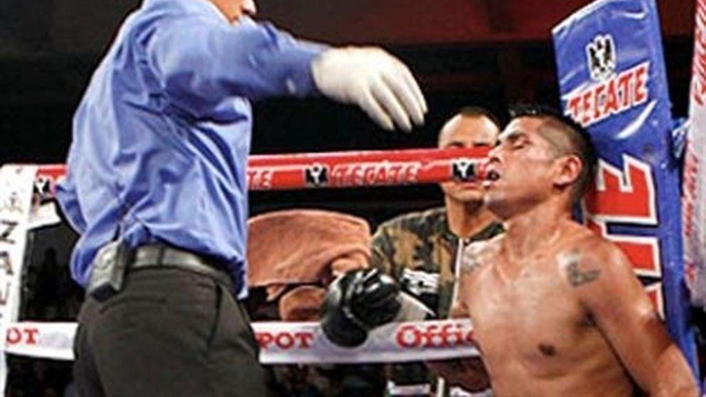 El boxeador mexicano Francisco Leal