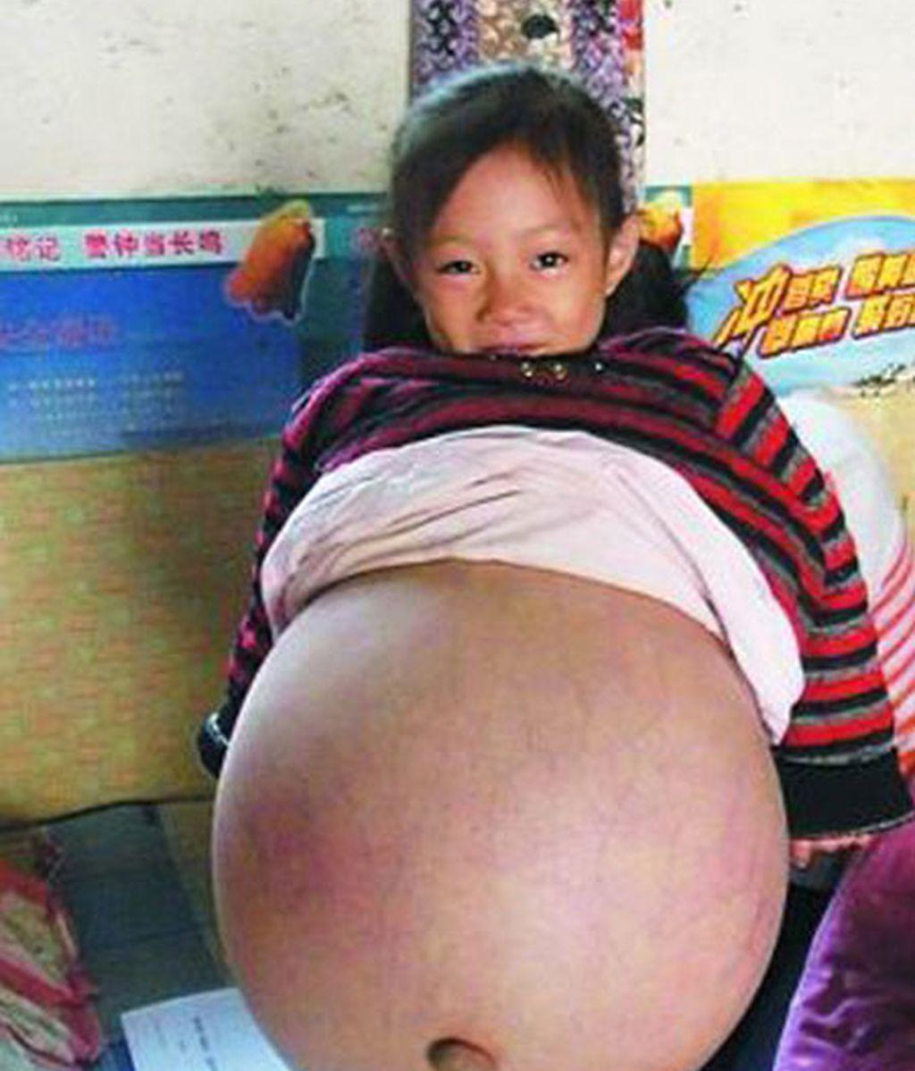 Padece una enfermedad que hincha su abdomen hasta límites extremos