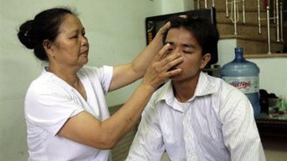Pham Thi Hong, la acupunturista vietnamita que puede determinar si un hombre es virgen o no. Foto archivo AP