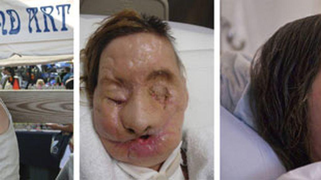 Carla ha recuperado su rostro gracias a un trasplante. Foto: EFE