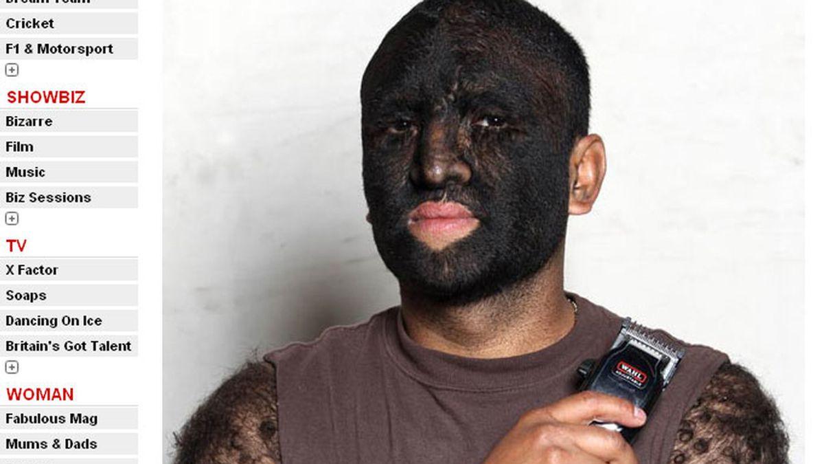 Larry Gomez es el hombre más peludo del mundo