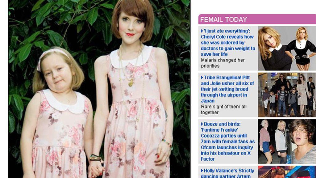 Madre e hija usando la misma ropa. La mujer de 26 años sufre anorexia desde los 13 años.