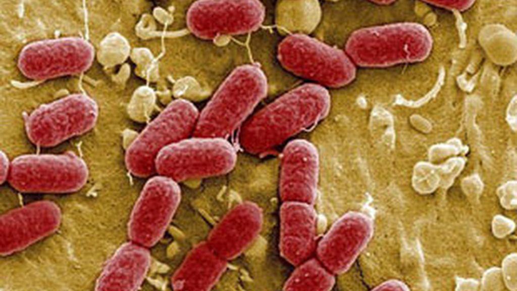 La bacteria Escherichia Coli, E. coli. Vídeo: Informativos Telecinco.