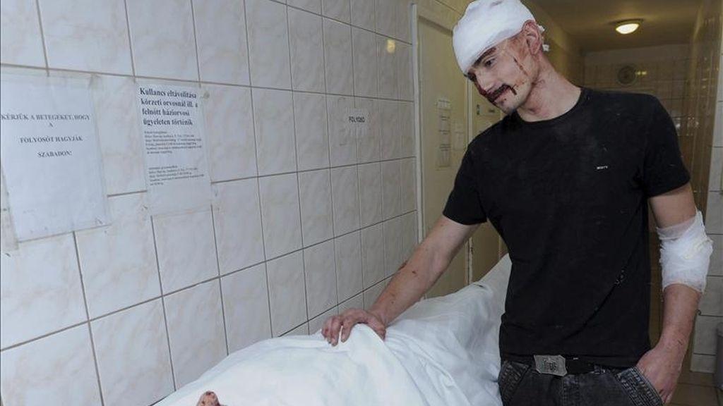 Un gitano romaní herido conforta a otro que permanece en peor estado en el hospital de Hatvan, a unos 57 kilómetros al este de Budapest, Hungría, a primera hora de hoy, miércoles 27 de abril de 2011. EFE