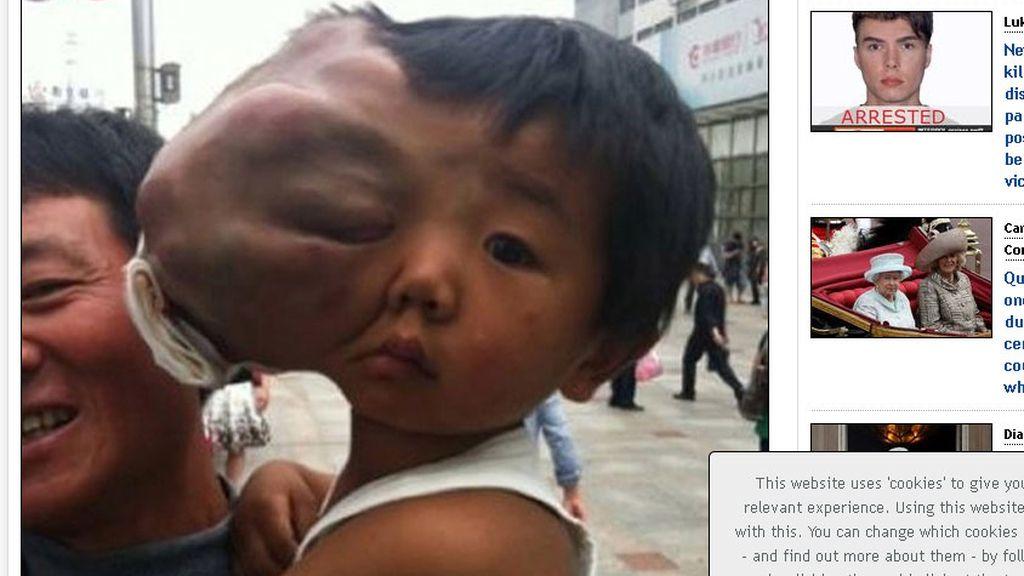 Padece un tumor facial casi mayor que su cabeza