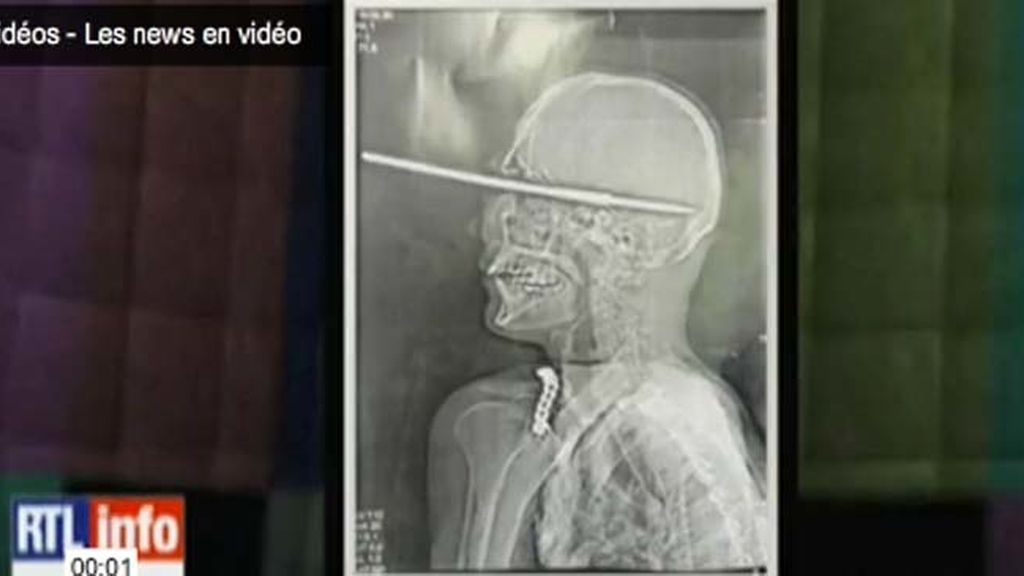 Se clava un arpón en el cráneo y sobrevive milagrosamente