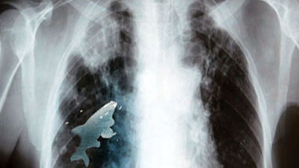 Pez vivo, pulmón, radiografía